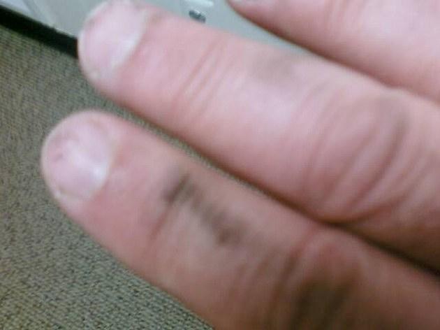 Lou's hand