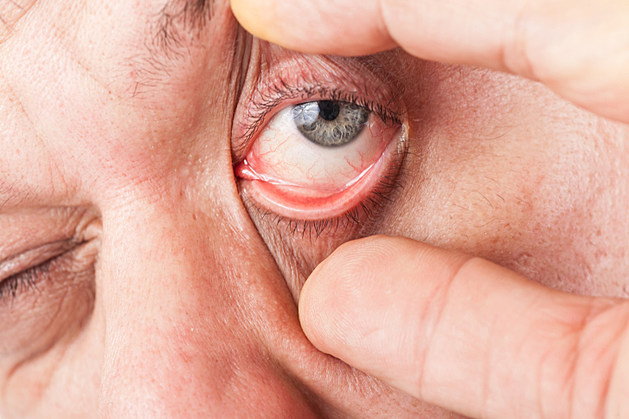 A man widen his eye with thumb and forefinger